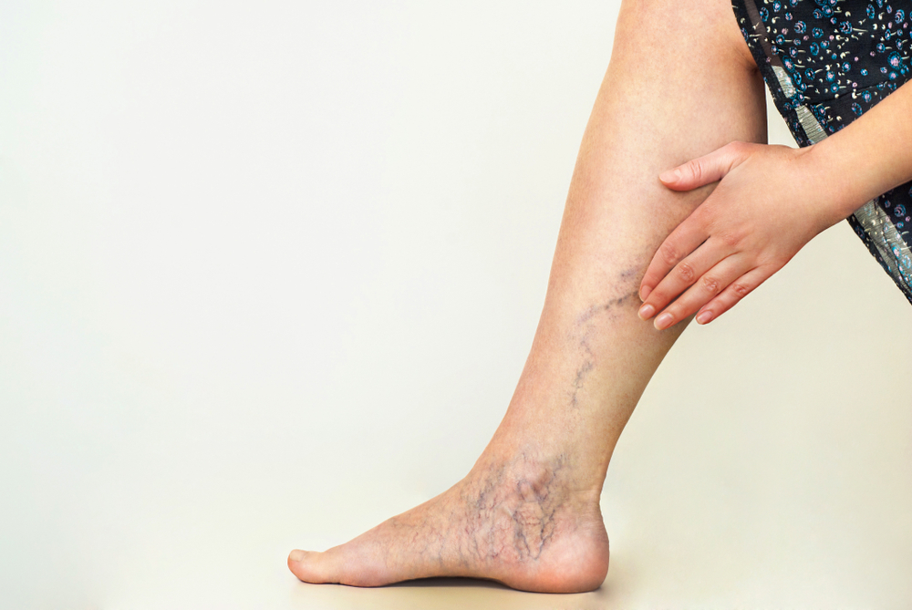 Are Lymphedema and Venous Edema the Same?